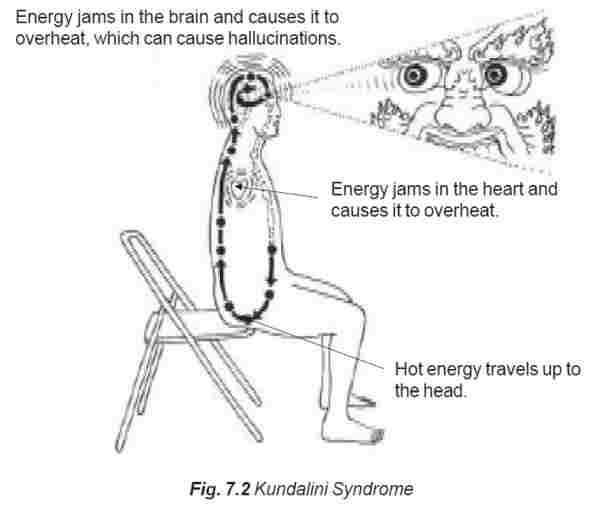 The Most Effective Cure for Kundalini Psychosis